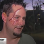 Florida man attacked by bear after letting his dog outside