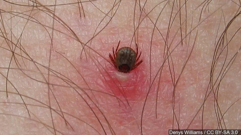 Symptoms Of Deer Tick Bite On Dogs