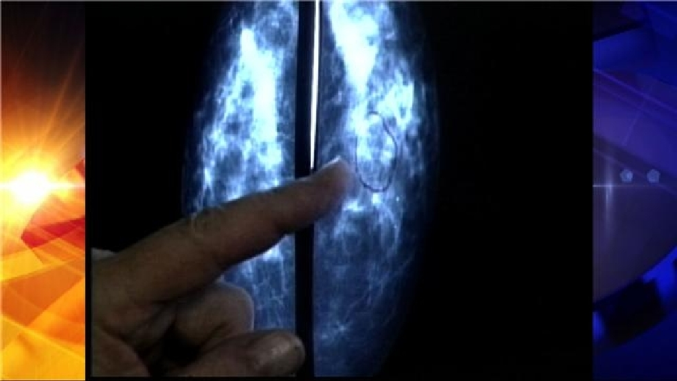 """cancer complications of treatment Complications of gum cancer  pictures, symptoms, signs, treatment, complications """" 2 pings/trackbacks for gum cancer – pictures, symptoms, signs, treatment."""