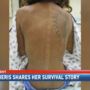 Alabama woman lost in woods shares survival story