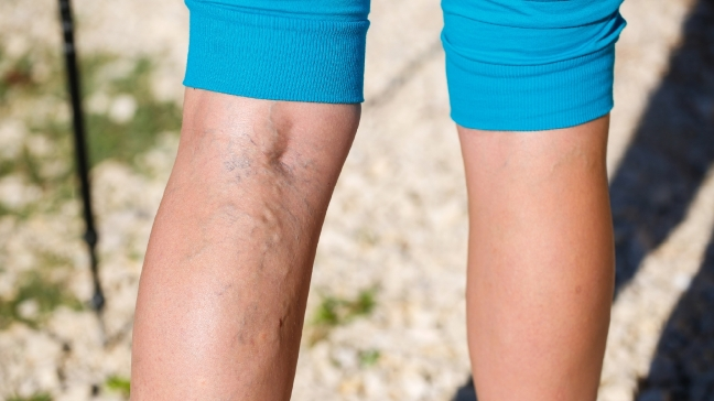 The Main Causes of Varicose Veins