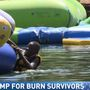 Burn survivors having a blast this week at Champ Camp