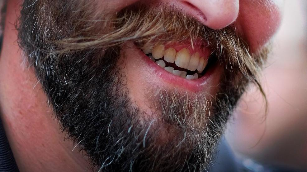 Study: Men with beards carry more germs than dogs do