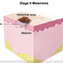 Melanoma impacts more than 1 million in U.S.